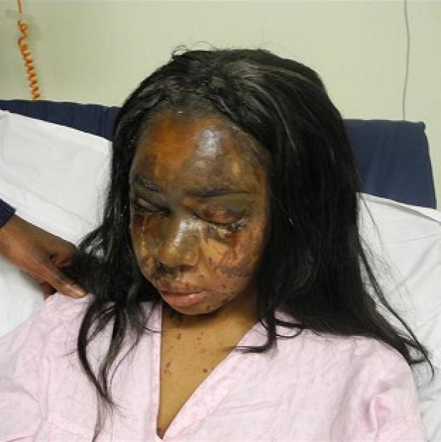 Witney Gazette: Naomi Oni, who was scarred for life in an acid attack, has accused police of incompetence over the investigation (Met Police)